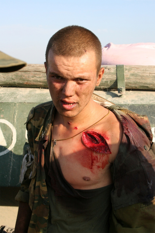 Wounded Russian soldier